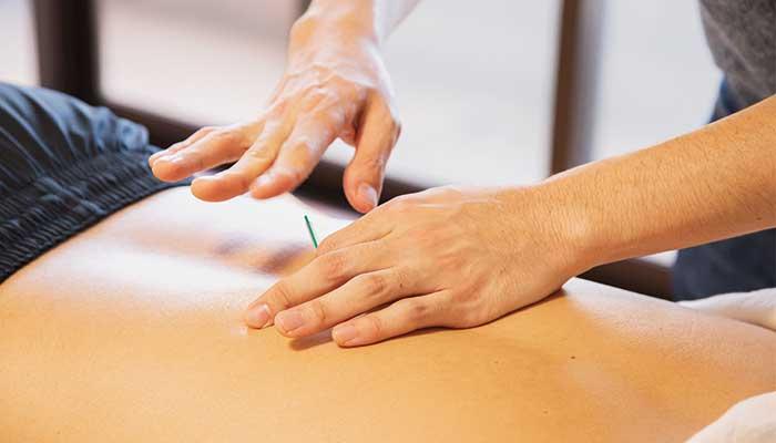 Comment fonctionne l'acupuncture ?