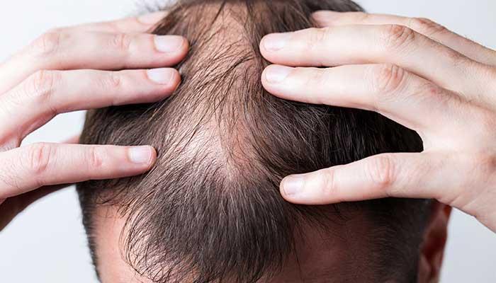 Quelles sont les causes de l'alopécie ?
