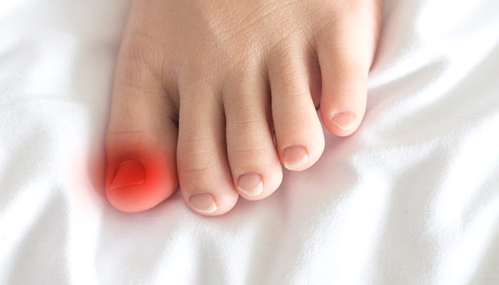 Ongles incarnés, quelles sont les causes ?